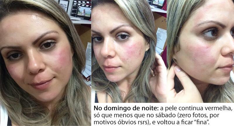 alergia-na-pele-vermelhidão