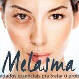 Melasma: 8 Cuidados Essenciais Pra Tratar o Problema