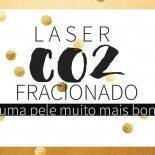 Laser CO2 Fracionado: Eu Fiz!