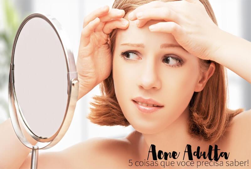 acne adulta hormonal