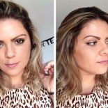 Como Fazer o Efeito do Botox Durar Mais?