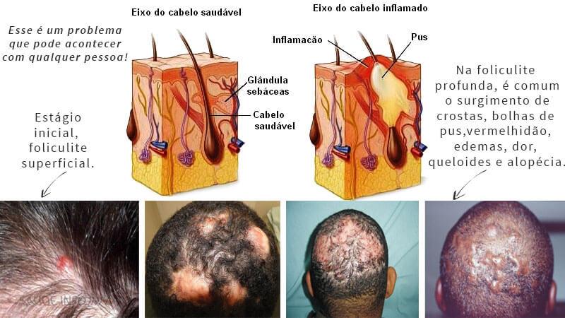 foliculite no couro cabeludo
