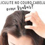 Foliculite no Couro Cabeludo: Como Tratar?